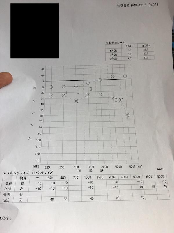 聴力検査結果
