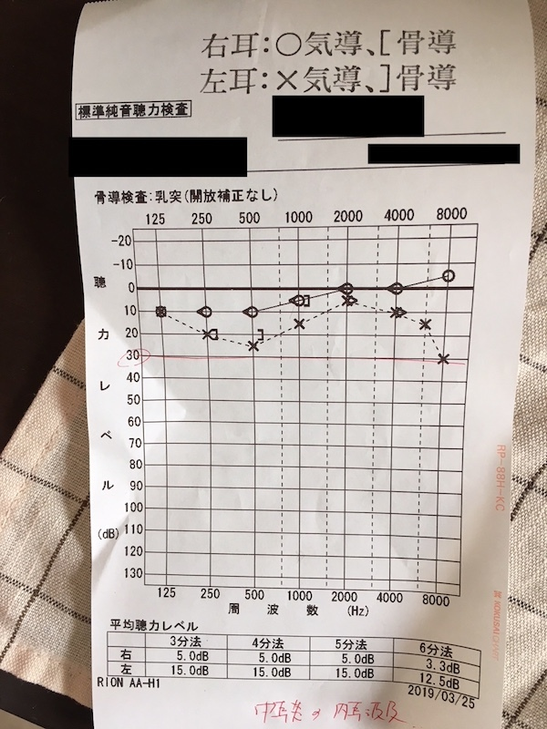 標準純音聴力検査結果