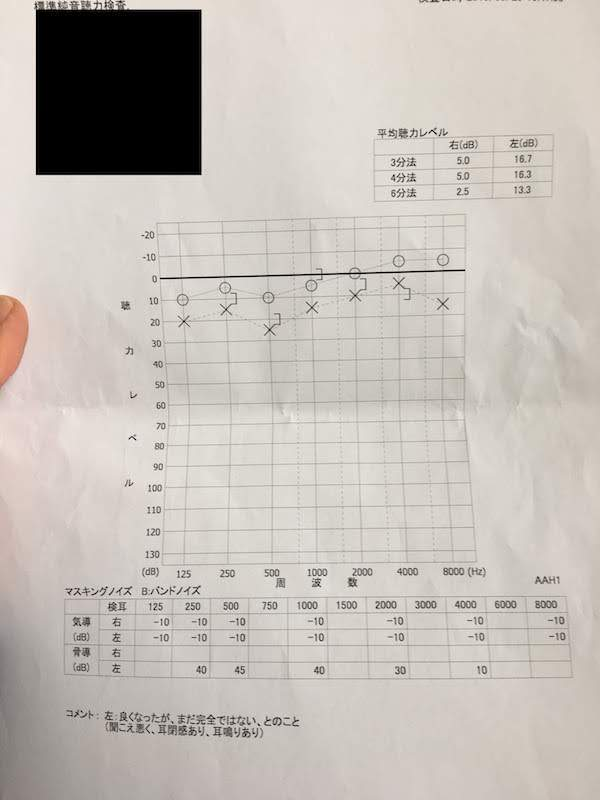 虎ノ門病院の耳鼻咽喉科での聴力検査